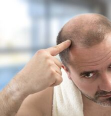 What Are Different Hair Loss Treatment Options?