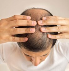 Can Saw Palmetto help to prevent hair loss?