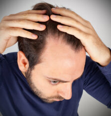 Do Vegans Risk Hair Loss?