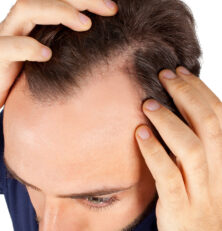 New World Beating Hair Loss Treatment
